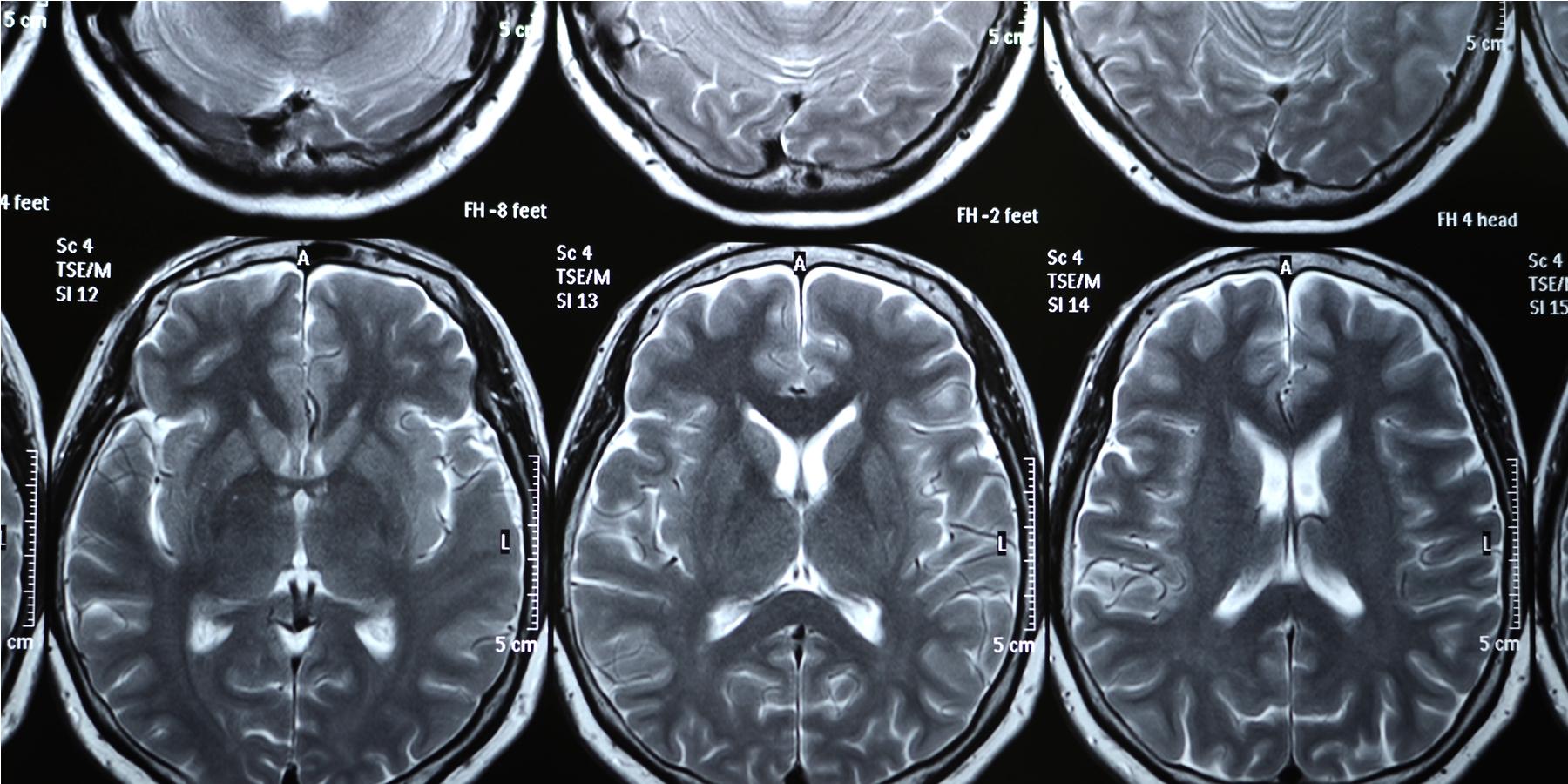 Brain Imaging Studies Seek Signs Of >> Diagnostic Brain Imaging In Psychiatry Current Uses And Future