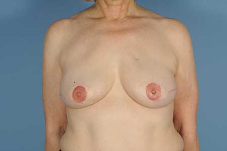 ​    ​​   Postmastectomy Breast Reconstruction with Bilateral Autologous Tissue, Nipple Reconstruction, and Areolar Tattooing