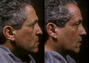 Detailed analysis of the same sides of the faces of two concordant, non-mirrored MZ twins reveals striking similarities