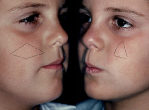 Both twin A (left) and twin B (right) exhibit a polygon of nevi only on opposite cheeks.